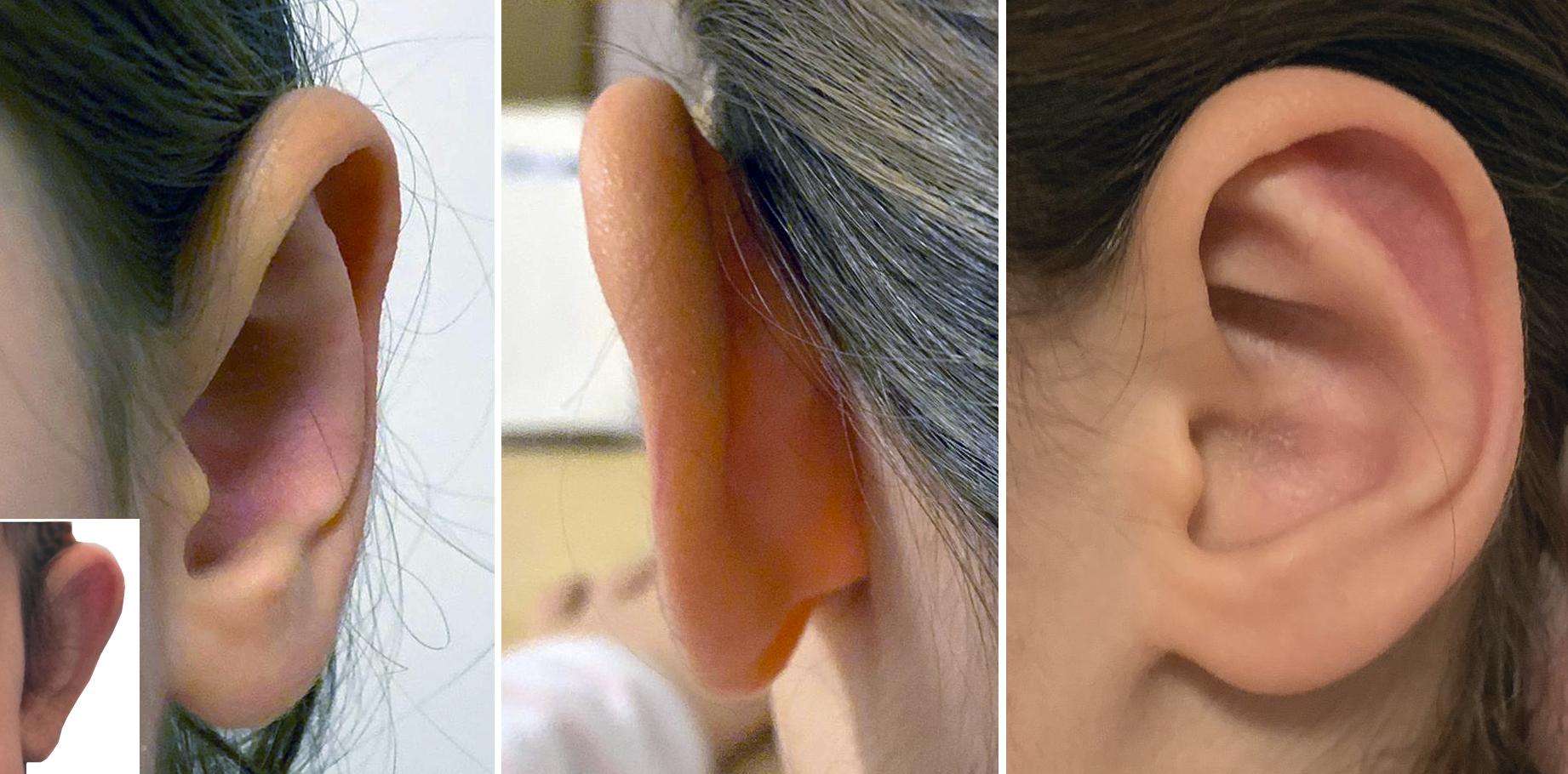 Anlegen op ohren abstehende ohne EARFOLD® Ohren